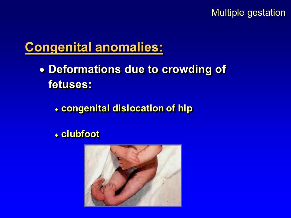 Multiple gestation Congenital anomalies:  Deformations due to crowding of fetuses:  congenital dislocation of hip  clubfoot Congenital anomalies: 