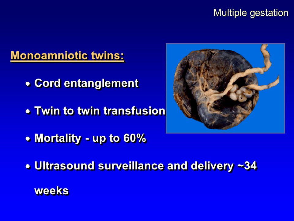 Multiple gestation Monoamniotic twins:  Cord entanglement  Twin to twin transfusion  Mortality - up to 60%  Ultrasound surveillance and delivery ~