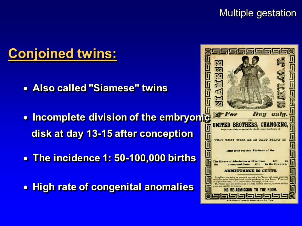 Multiple gestation Conjoined twins:  Also called