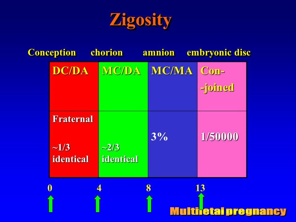 ZigosityZigosityDC/DAMC/DAMC/MACon--joinedFraternal ~1/3 identical ~2/3 identical 3%1/50000 0 4 8 13 Conception chorion amnion embryonic disc