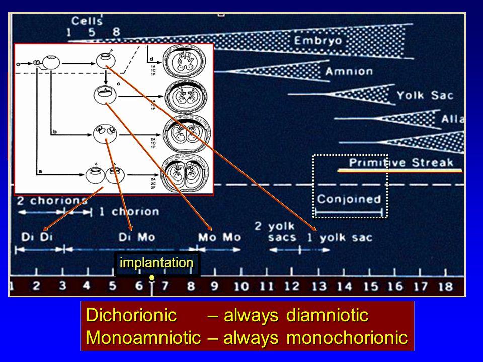 Dichorionic – always diamniotic Monoamniotic – always monochorionic Multiple gestation Monozygotic twinning: implantationimplantation