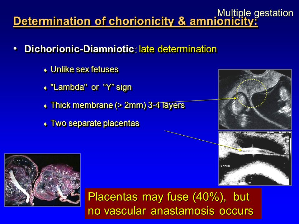 Multiple gestation Determination of chorionicity & amnionicity: Dichorionic-Diamniotic: late determination Dichorionic-Diamniotic: late determination