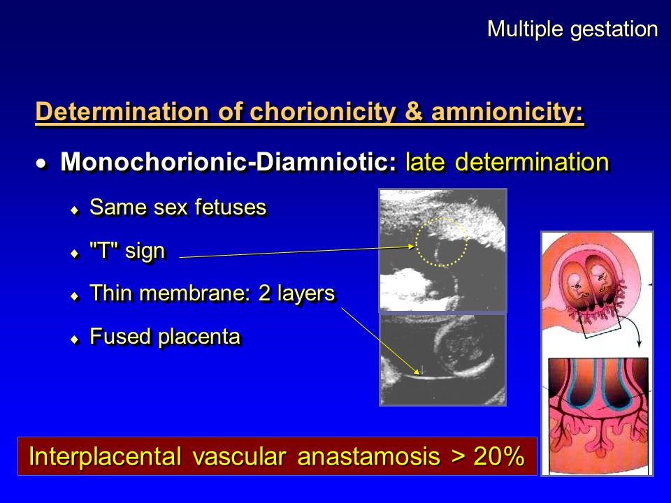 Multiple gestation Determination of chorionicity & amnionicity:  Monochorionic-Diamniotic: late determination  Same sex fetuses 