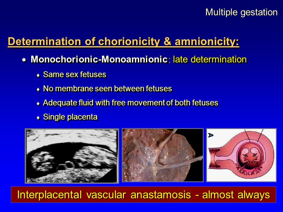 Multiple gestation Determination of chorionicity & amnionicity:  Monochorionic-Monoamnionic: late determination  Same sex fetuses  No membrane seen