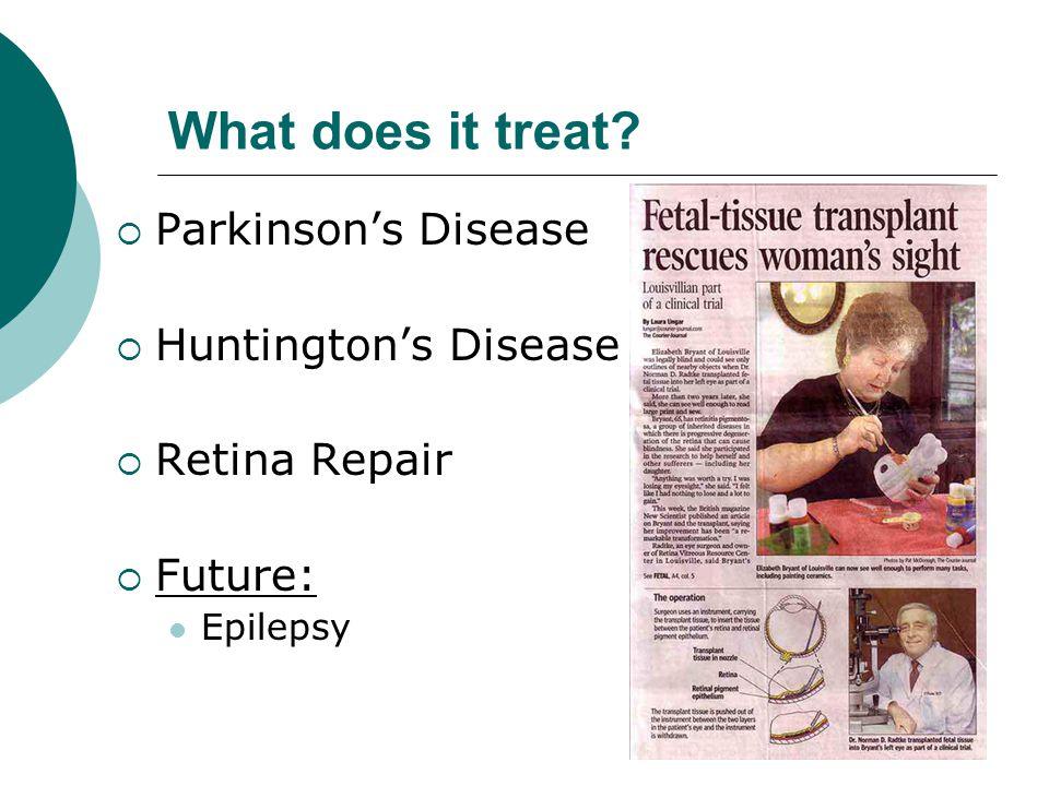 What does it treat  Parkinson's Disease  Huntington's Disease  Retina Repair  Future: Epilepsy