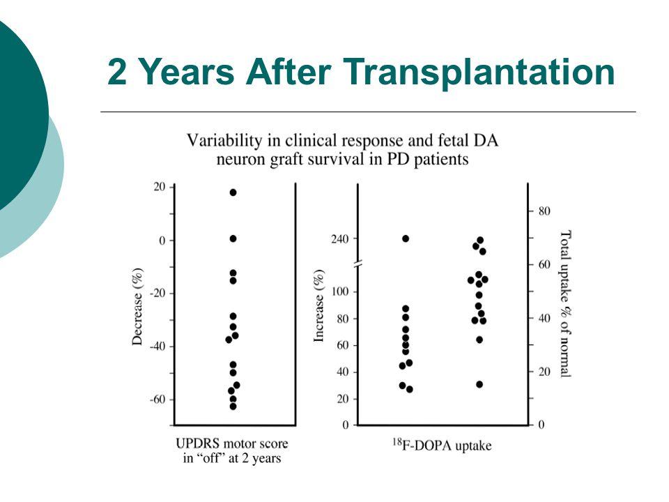 2 Years After Transplantation