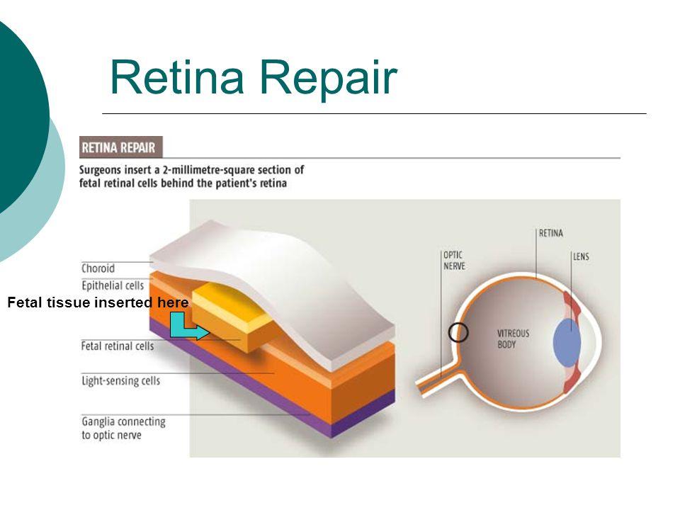 Retina Repair Fetal tissue inserted here