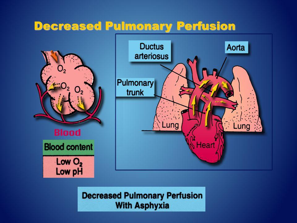 Decreased Pulmonary Perfusion