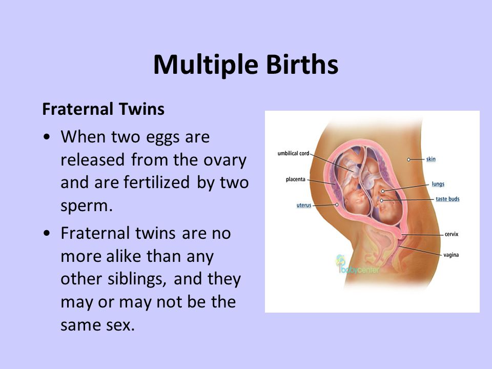 Multiple Births Fraternal Twins When two eggs are released from the ovary and are fertilized by two sperm.