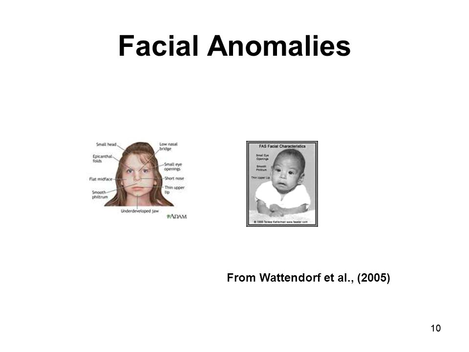 10 Facial Anomalies From Wattendorf et al., (2005)
