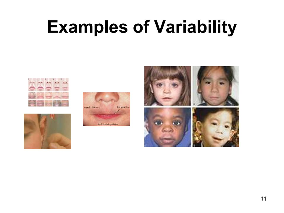 11 Examples of Variability