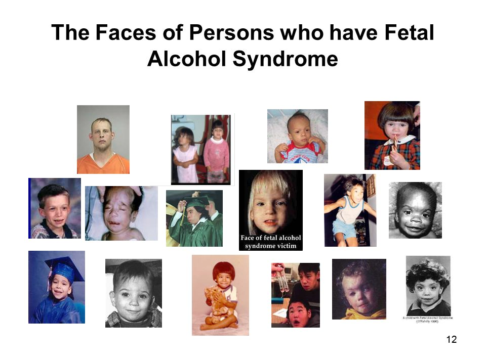 12 The Faces of Persons who have Fetal Alcohol Syndrome
