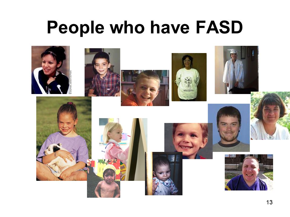 13 People who have FASD