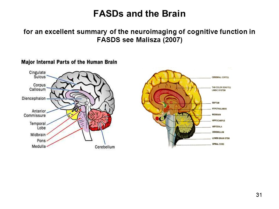 31 FASDs and the Brain for an excellent summary of the neuroimaging of cognitive function in FASDS see Malisza (2007)