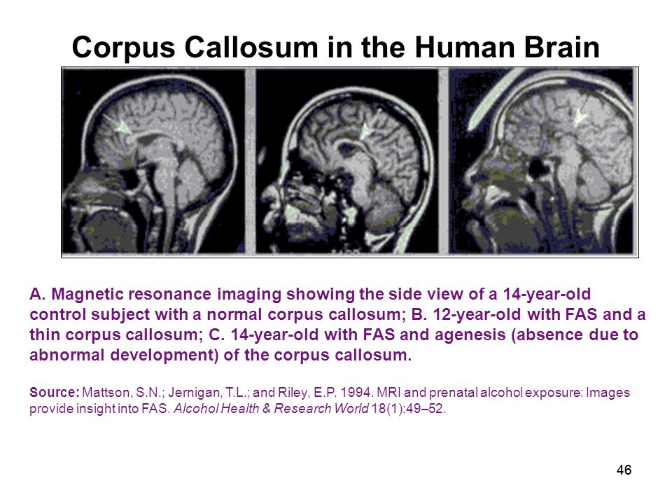 46 Corpus Callosum in the Human Brain A.