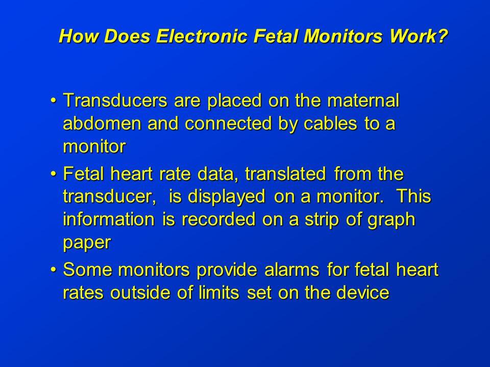 Electronic Fetal Monitors Case Description A woman was about to deliver twins.