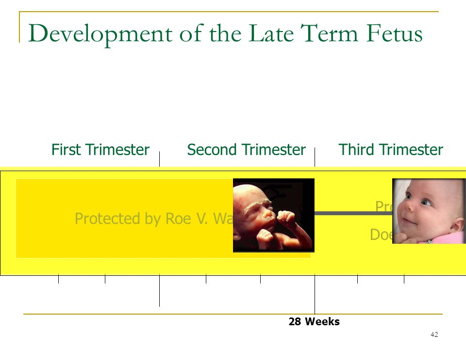 42 Development of the Late Term Fetus Conception 28 Weeks Birth First TrimesterSecond TrimesterThird Trimester Protected by Doe V.