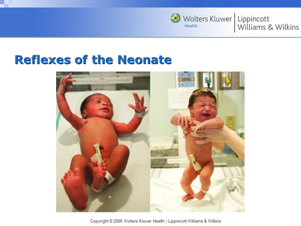 Copyright © 2008 Wolters Kluwer Health | Lippincott Williams & Wilkins Reflexes of the Neonate