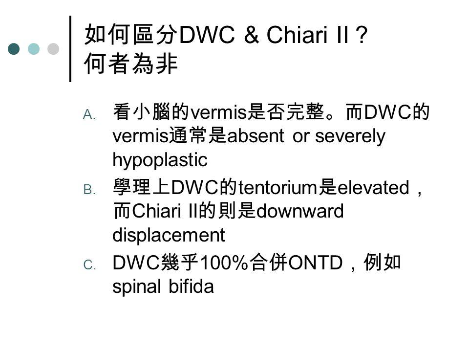 如何區分 DWC & Chiari II ? 何者為非 A.