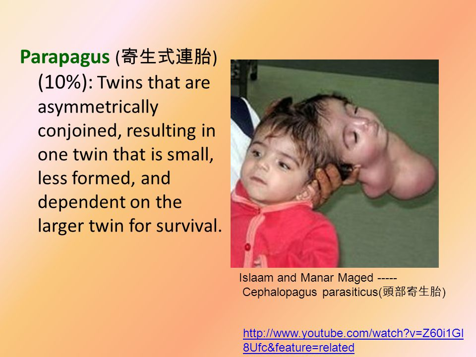 Omphalopagus ( 腹部連胎 ) (10%): Two bodies fused at the lower chest.