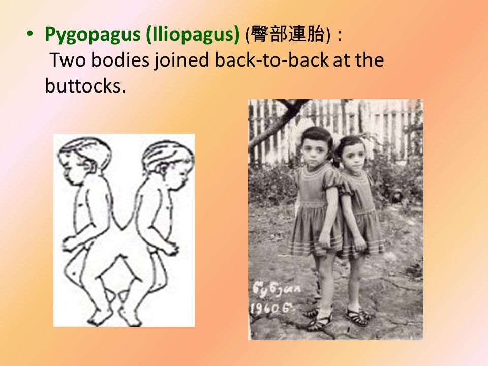 Xiphopagus: Two bodies fused in the xiphoid( 劍胸骨 ) cartilage, which is approximately from the navel to the lower breastbone.
