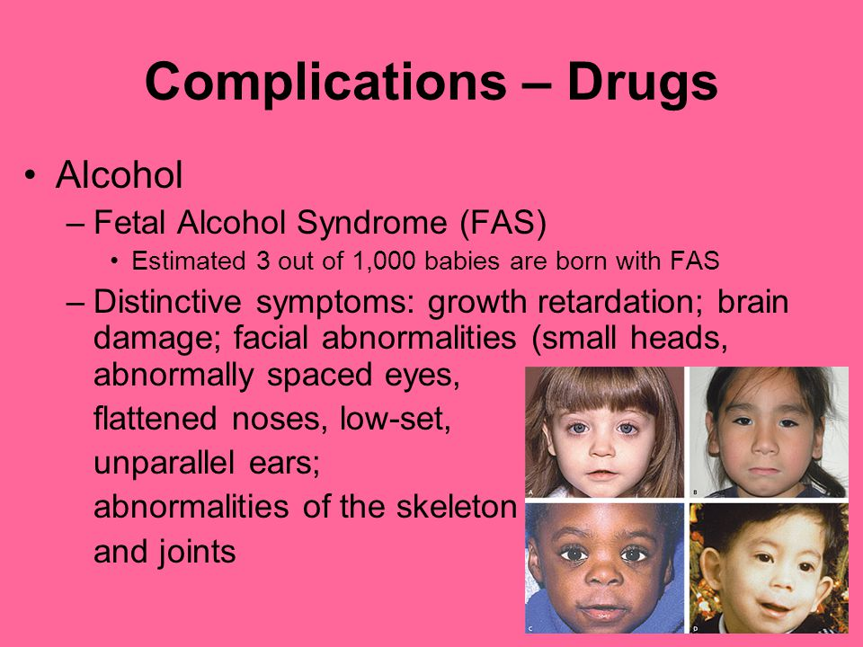 Complications – Drugs Alcohol –Fetal Alcohol Syndrome (FAS) Estimated 3 out of 1,000 babies are born with FAS –Distinctive symptoms: growth retardation; brain damage; facial abnormalities (small heads, abnormally spaced eyes, flattened noses, low-set, unparallel ears; abnormalities of the skeleton and joints