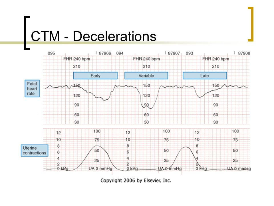 CTM - Decelerations
