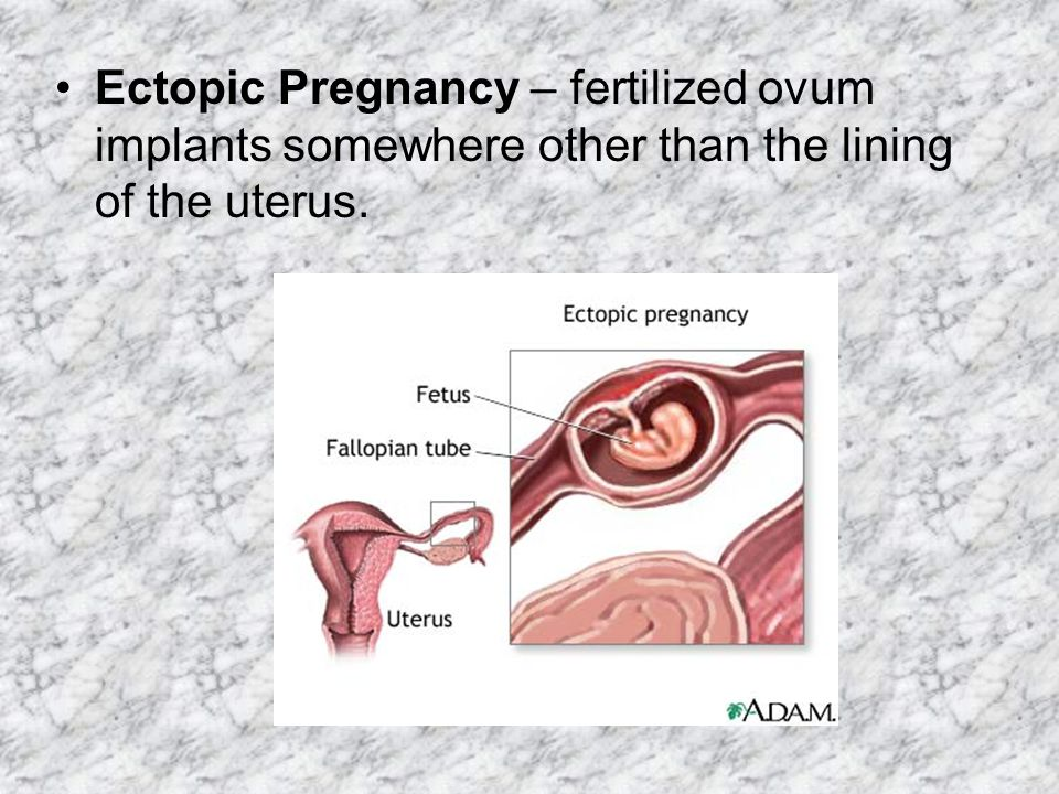 Ectopic Pregnancy – fertilized ovum implants somewhere other than the lining of the uterus.