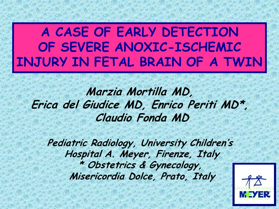 A CASE OF EARLY DETECTION OF SEVERE ANOXIC-ISCHEMIC INJURY IN FETAL BRAIN OF A TWIN Marzia Mortilla MD, Erica del Giudice MD, Enrico Periti MD*, Claud