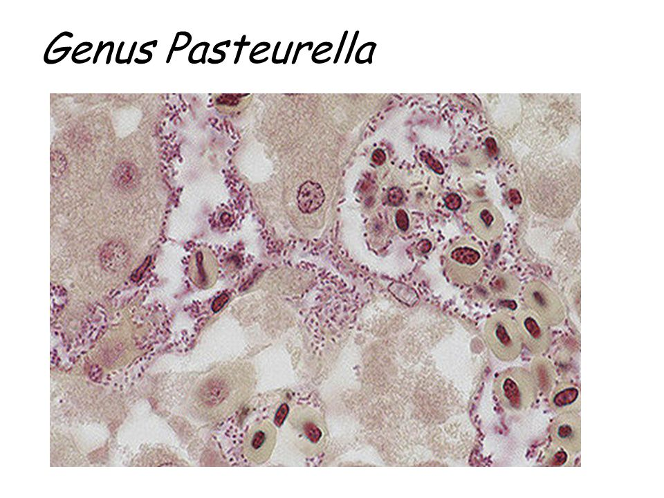 Genus Pasteurella