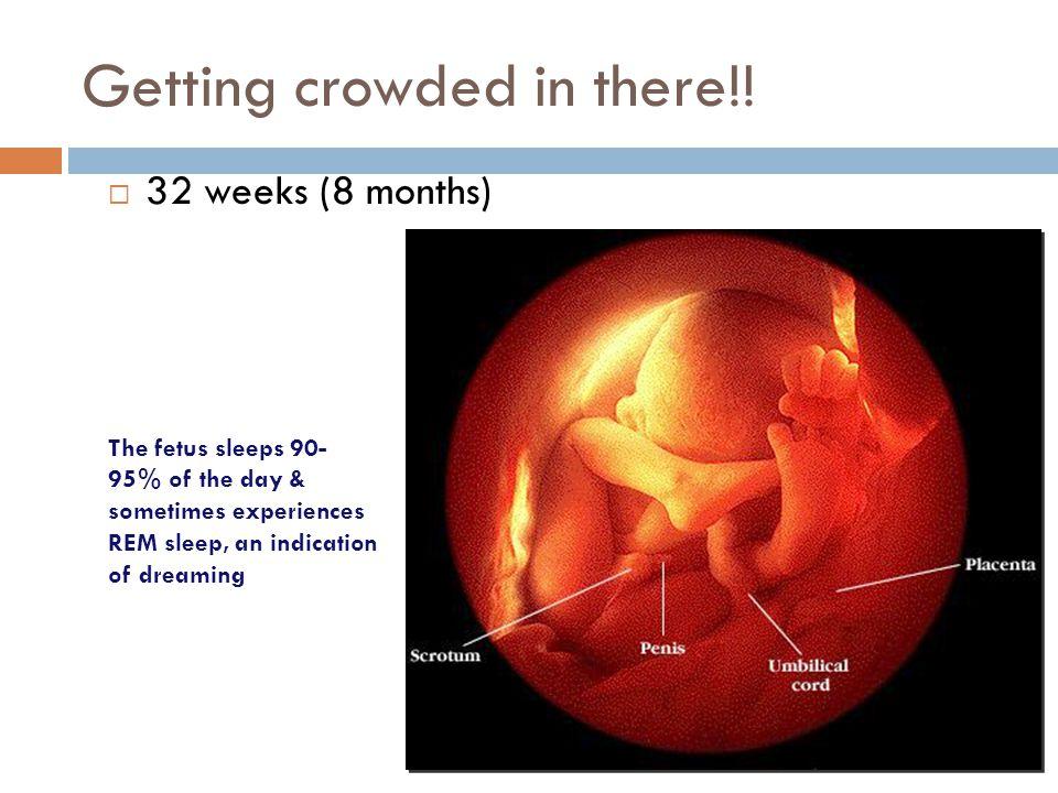 Human fetal development  30 weeks (7.5 months) umbilical cord