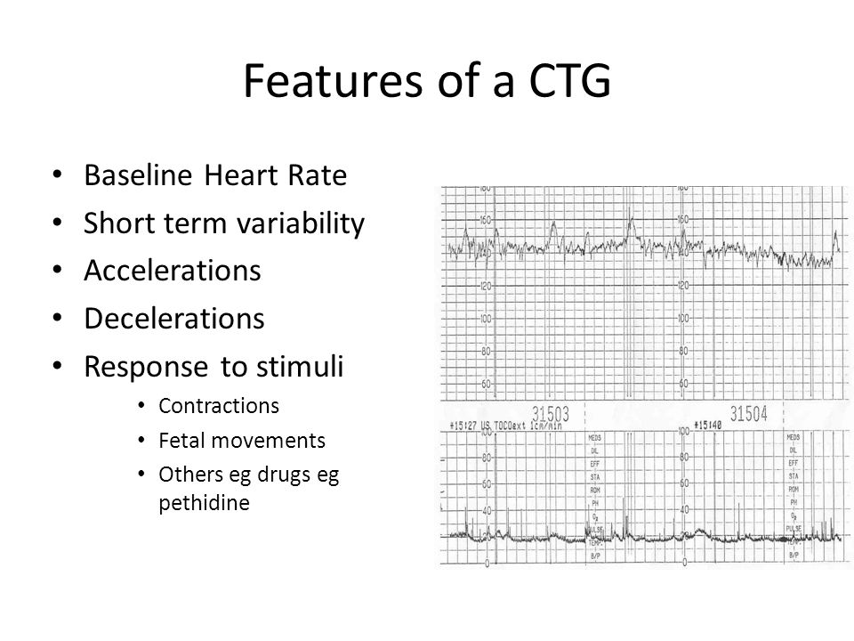 Features of a CTG Baseline Heart Rate Short term variability Accelerations Decelerations Response to stimuli Contractions Fetal movements Others eg dr