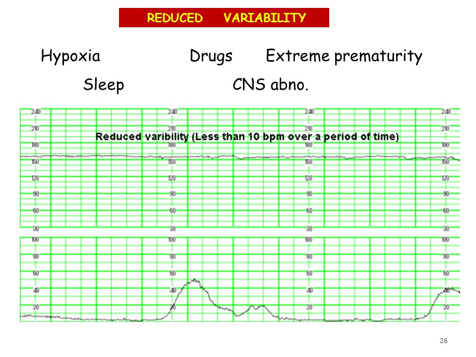 26 Hypoxia Drugs Extreme prematurity Sleep CNS abno. REDUCED VARIABILITY