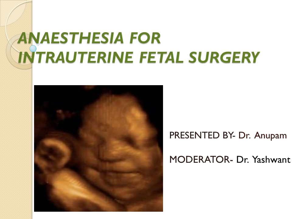 fetal surgery Fetal surgery continues to advance date: february 21, 2010 source: children's hospital of philadelphia summary: repairing birth defects in the womb.