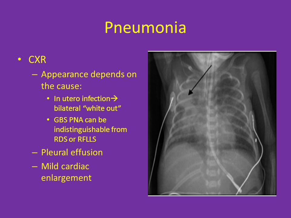 Pneumonia CXR – Appearance depends on the cause: In utero infection  bilateral white out GBS PNA can be indistinguishable from RDS or RFLLS – Pleural effusion – Mild cardiac enlargement
