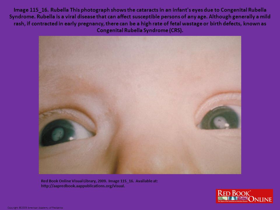 Copyright ©2009 American Academy of Pediatrics Red Book Online Visual Library, 2009.