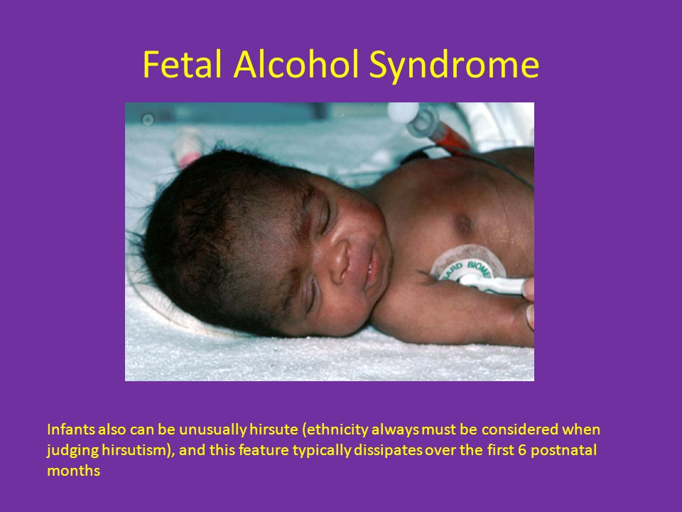 Fetal Alcohol Syndrome Infants also can be unusually hirsute (ethnicity always must be considered when judging hirsutism), and this feature typically dissipates over the first 6 postnatal months