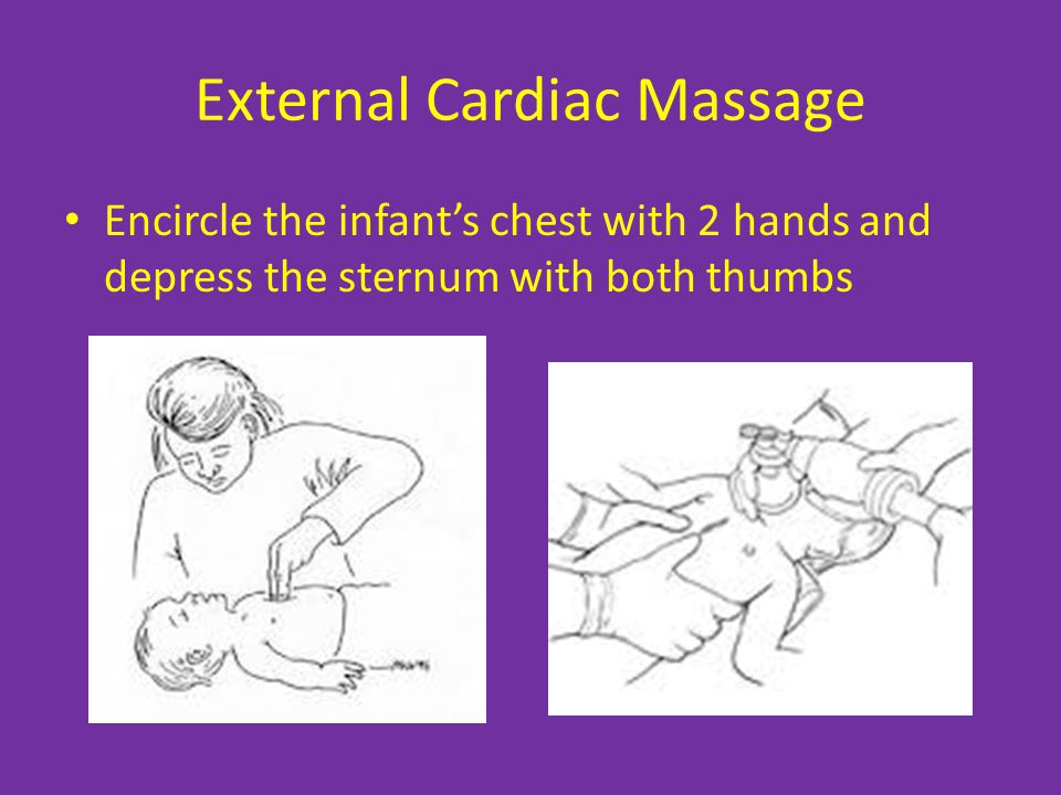 External Cardiac Massage Encircle the infant's chest with 2 hands and depress the sternum with both thumbs