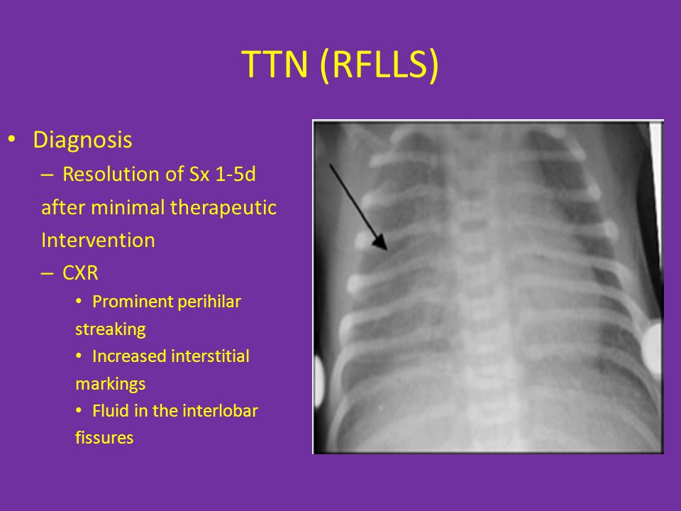 TTN (RFLLS) Diagnosis – Resolution of Sx 1-5d after minimal therapeutic Intervention – CXR Prominent perihilar streaking Increased interstitial markings Fluid in the interlobar fissures