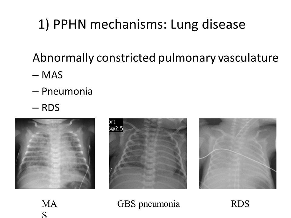 1) PPHN mechanisms: Lung disease Abnormally constricted pulmonary vasculature – MAS – Pneumonia – RDS MA S RDSGBS pneumonia