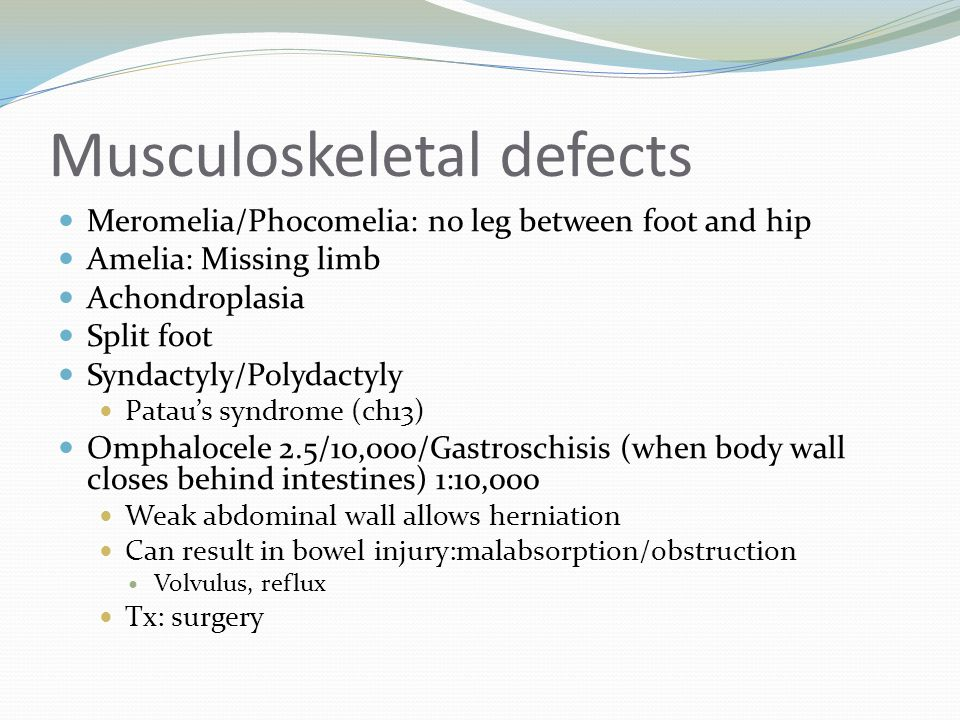 Musculoskeletal defects Meromelia/Phocomelia: no leg between foot and hip Amelia: Missing limb Achondroplasia Split foot Syndactyly/Polydactyly Patau'
