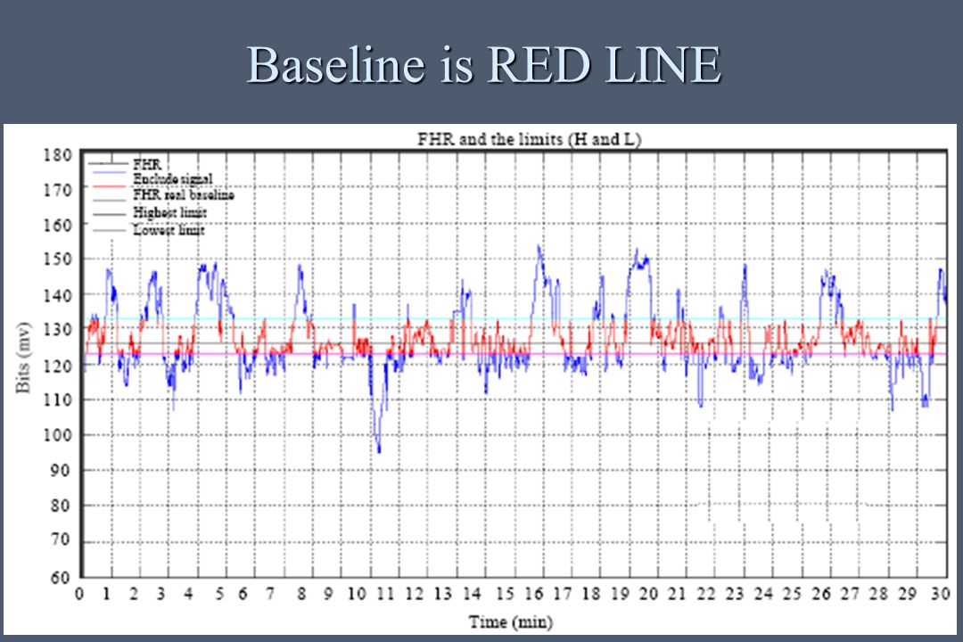 Baseline is RED LINE