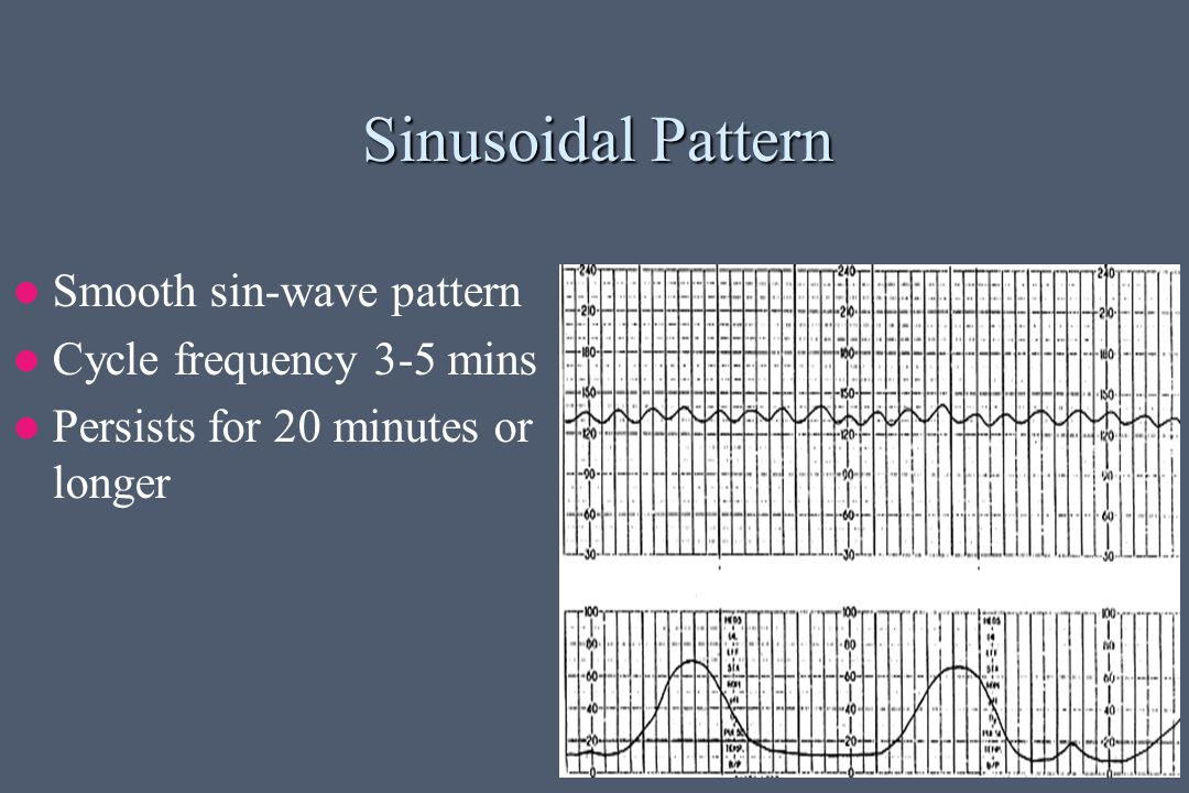 Sinusoidal Pattern Smooth sin-wave pattern Cycle frequency 3-5 mins Persists for 20 minutes or longer