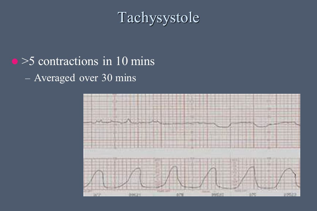 Tachysystole >5 contractions in 10 mins – Averaged over 30 mins