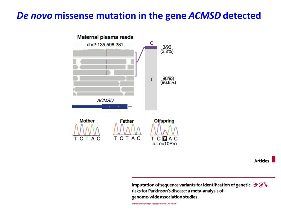 De novo missense mutation in the gene ACMSD detected