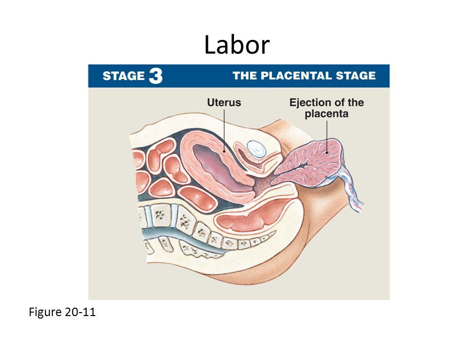 Labor Figure 20-11