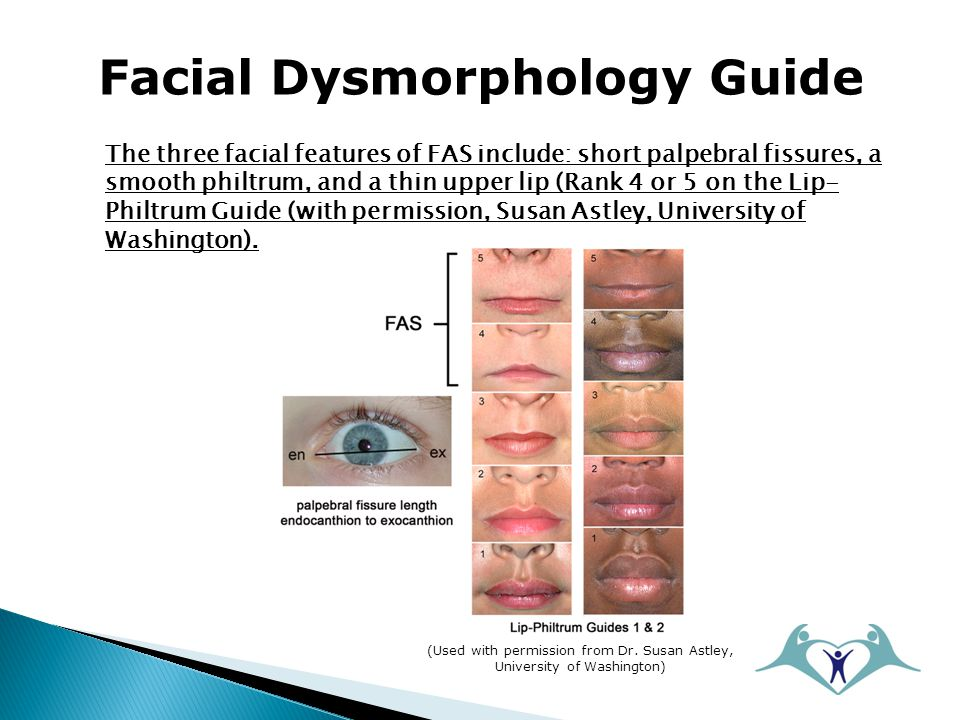 Facial Dysmorphology Guide The three facial features of FAS include: short palpebral fissures, a smooth philtrum, and a thin upper lip (Rank 4 or 5 on the Lip- Philtrum Guide (with permission, Susan Astley, University of Washington).