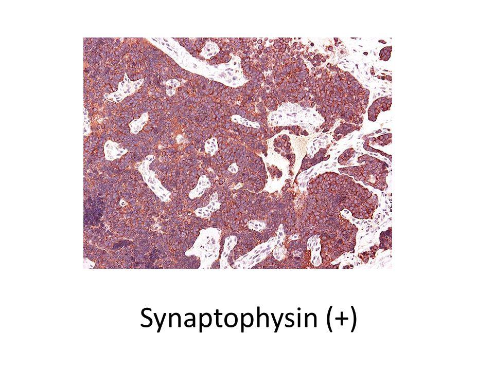 Synaptophysin (+)