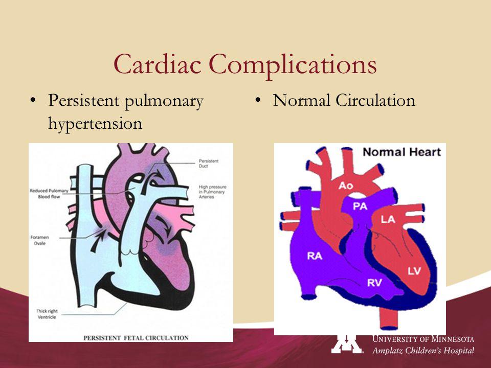 Cardiac Complications Persistent pulmonary hypertension Normal Circulation