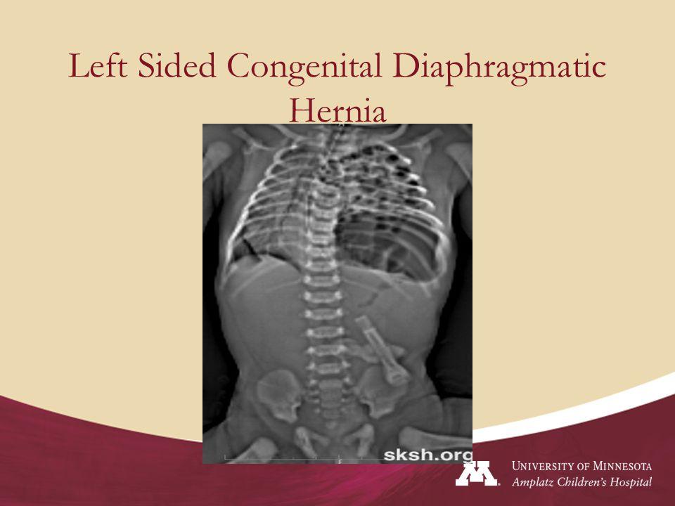 Left Sided Congenital Diaphragmatic Hernia